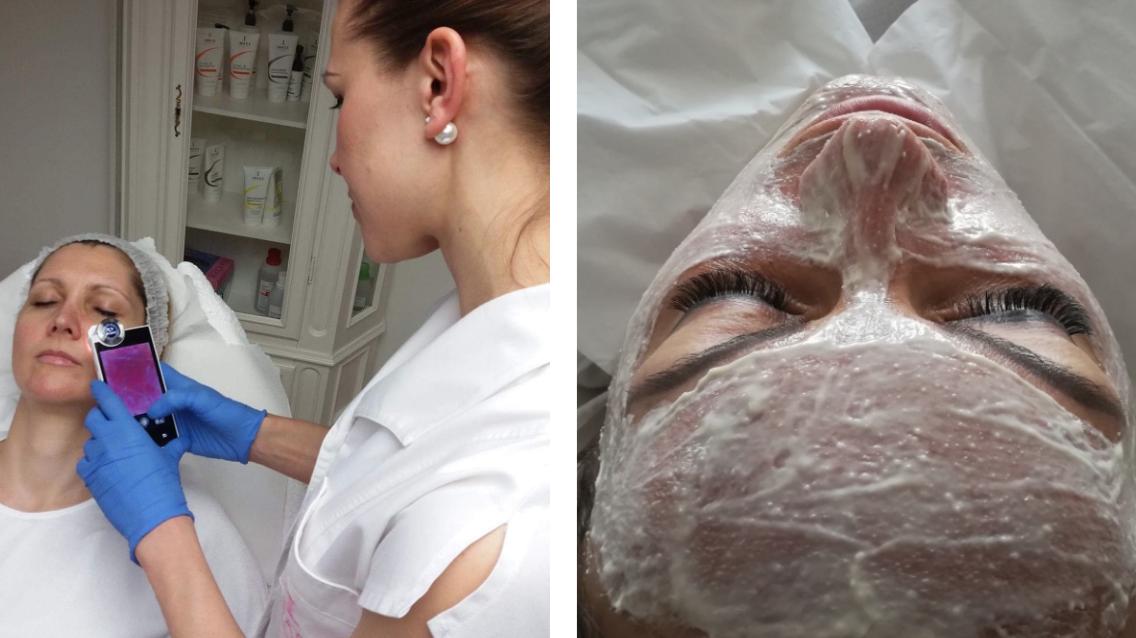pattanásos bőr felnőttkorban, pattanásos bőrre gyógyszer, pattanásos bőr okai, arcpakolás pattanásos bőrre, pattanásos bőr kezelés, Elite Studio kozmetika, online időpontfoglaló program BWNET_