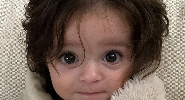 Alexis Bartlett teljes fejbőrét borító barna hajjal látta meg a napvilágot Sydney-ben. Alig pár hetet töltött anyja méhében, amikor ultrahanggal kimutatták, hogy van haja, azóta hat hónapos és vállig érő barna haja igazi különlegesség.