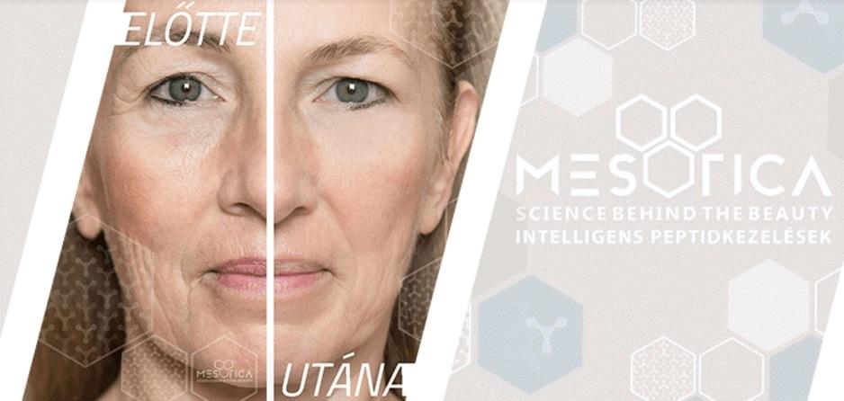Magas hatékonyságú mezoterápiás cseppek innovatív kozmetikusoknak!